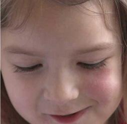 Стволови клетки от пъпна връв лекуват мозъчна травма, случаят на Спарой