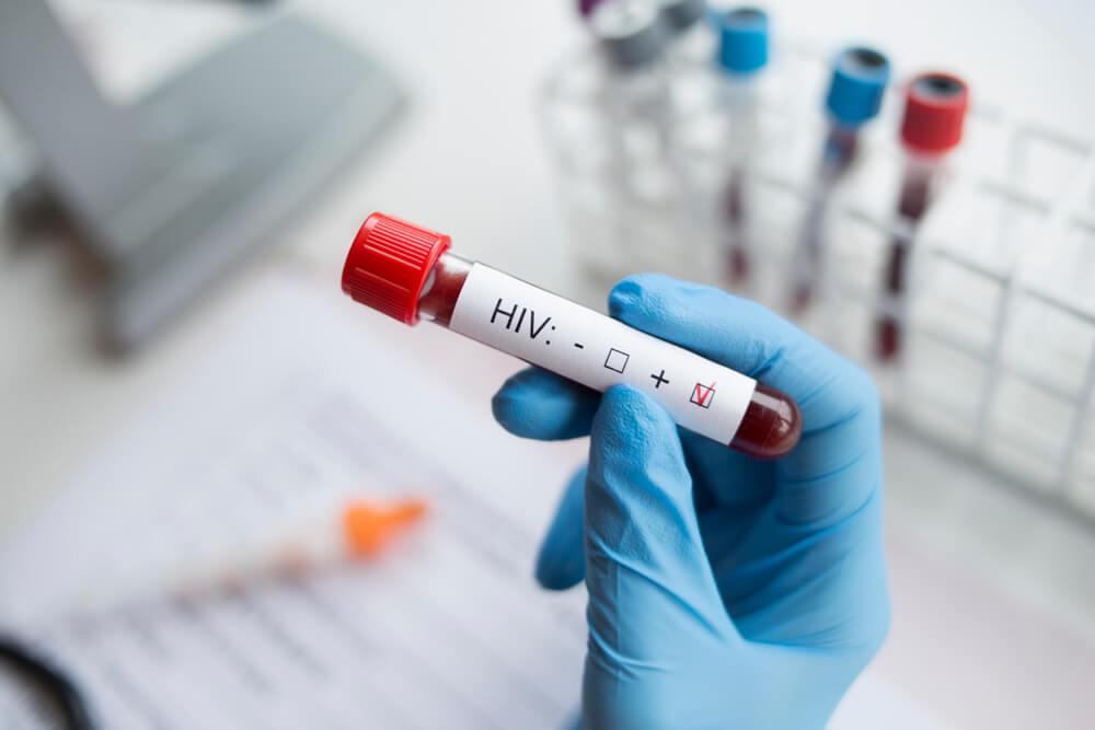 Втори пациент с ХИВ, излекуван благодарение на лечение със стволови клетки